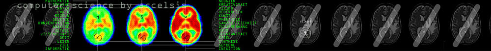 Accelsis Technologies, Computergrafik »Gehirntomographie« für Intra- und Internet.